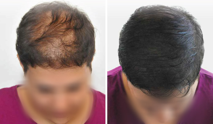 hair transplants for women
