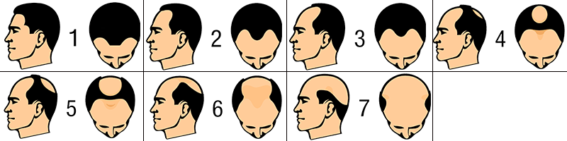 Hair loss in men patterns