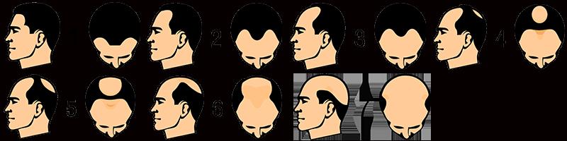 أنماط تساقط الشعر عند الرجال