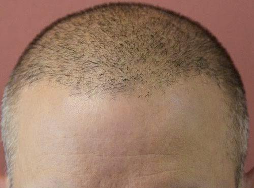 بعد عملية زراعة الشعر