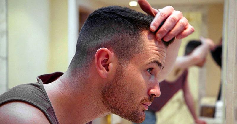 تساقط الشعر لدى الرجال
