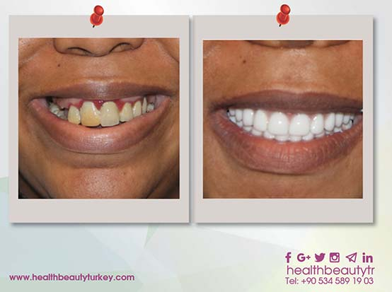 dental crown and implant