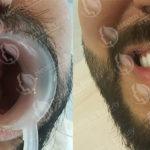 تلبسات الاسنان في تركيا