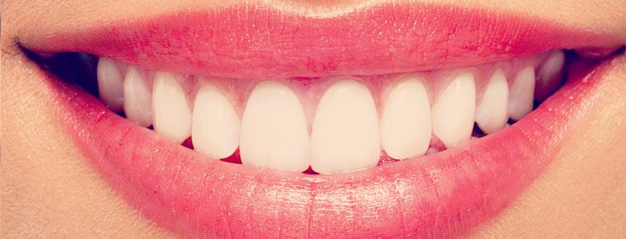 تلبيس الأسنان في تركيا