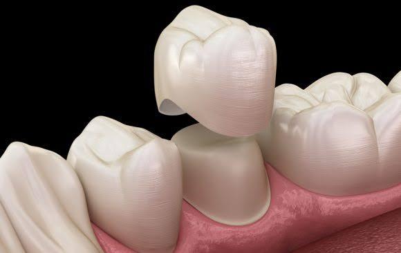 تلبيس الاسنان بالزيركون
