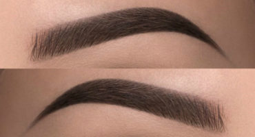 How Are Eyebrow Hair Transplant Procedures Different?