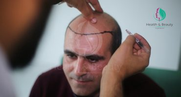 Decision to Have Hair Transplant Surgery