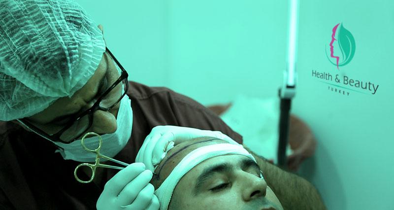 What Is Hair Transplant Micro Grafting ?