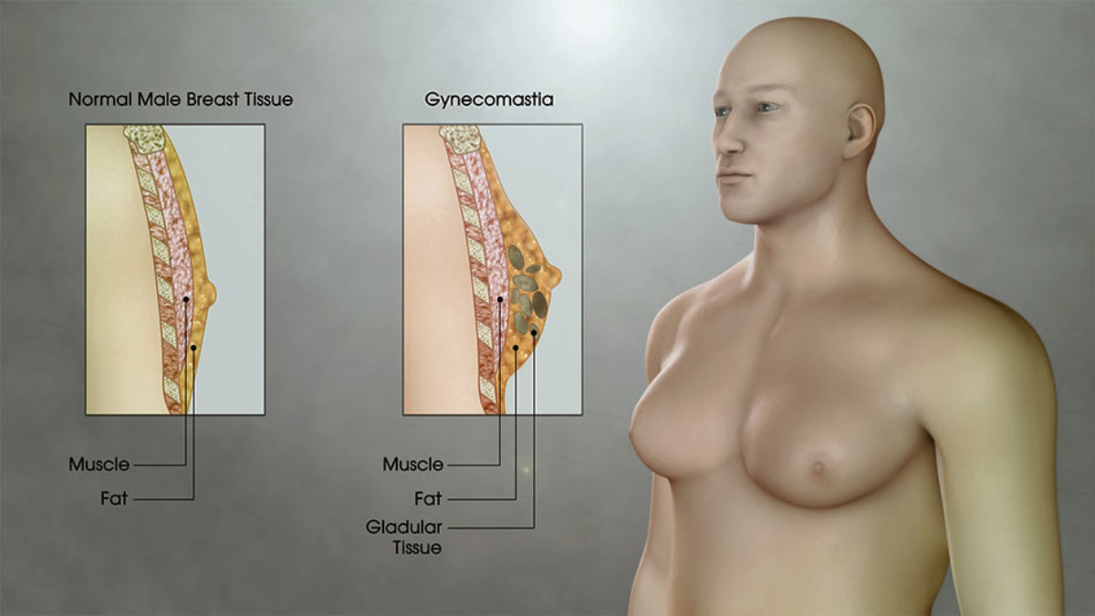 عملية التثدي عند الرجال او تصغير الثدي المركز التركي للصحة والجمال