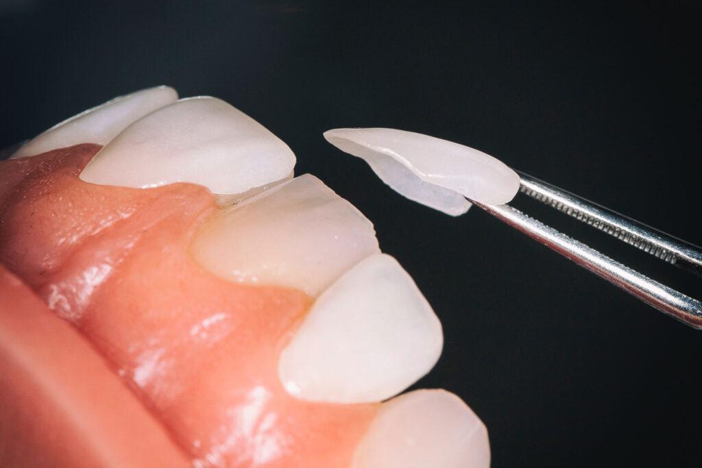 عدسات اللومينير للأسنان