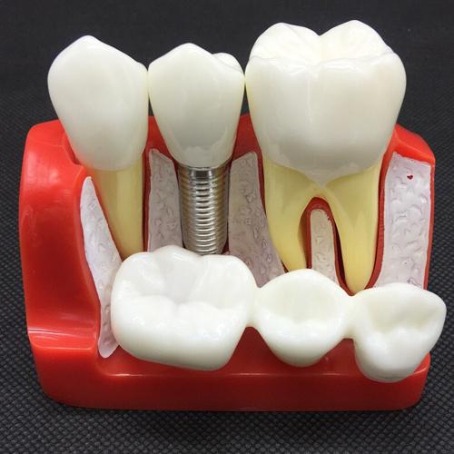 استبدال الأسنان بين الزراعة وتركيب الجسر