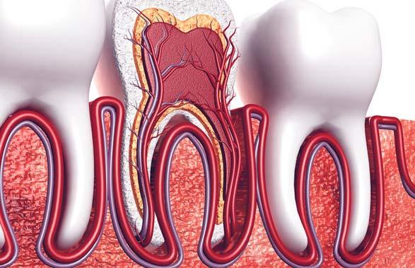 علاج قناة الجذر