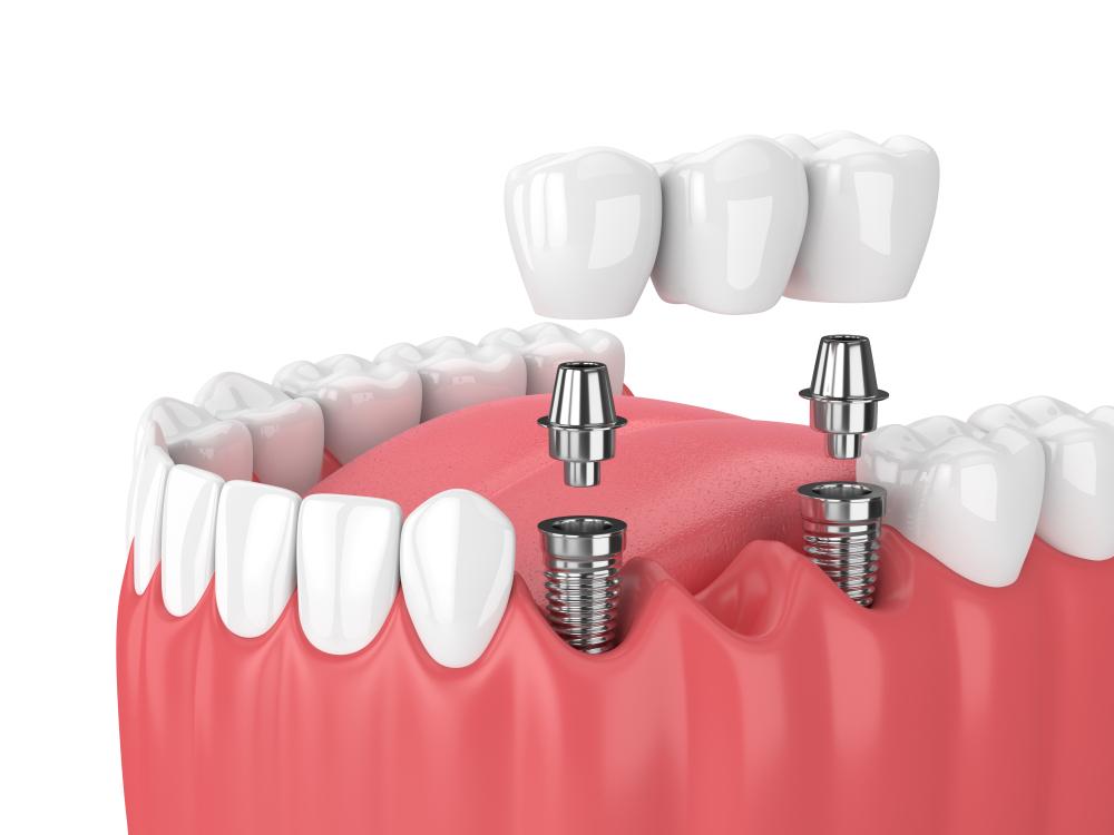 تركيب جسور الأسنان