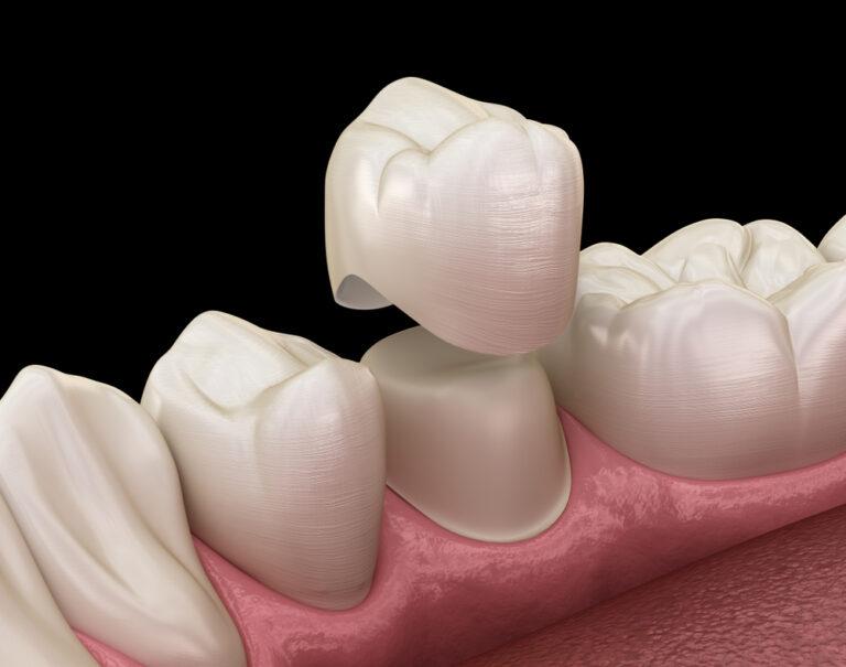 تيجان الأسنان في تركيا