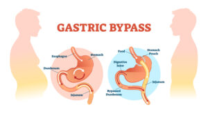 bypass and diabetes