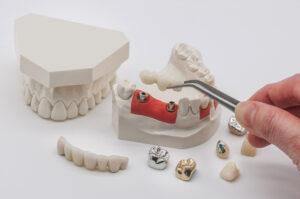 ADVANTAGES OF ZIRCONIA IMPLANT ABUTMENTS