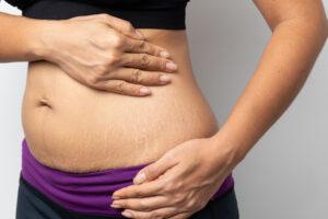 عملية تجميل ما بعد الولادة
