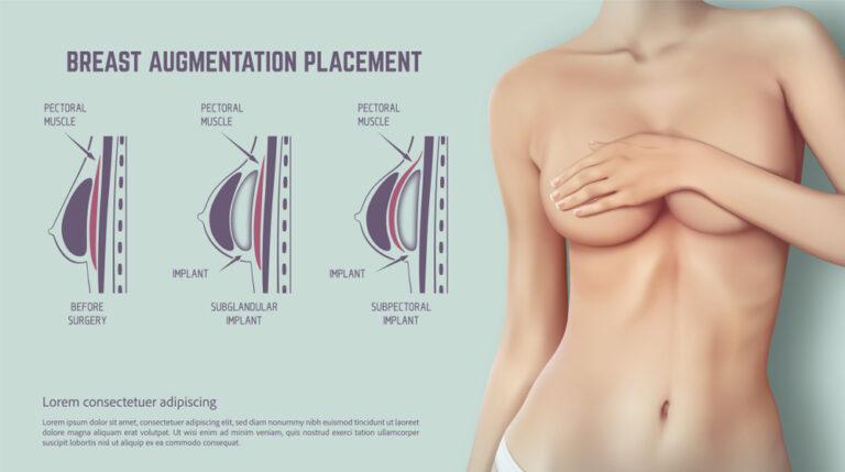 أين توضع زرعات الثدي