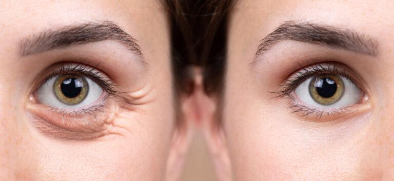 6 طرق غير جراحية لعلاج شيخوخة العين