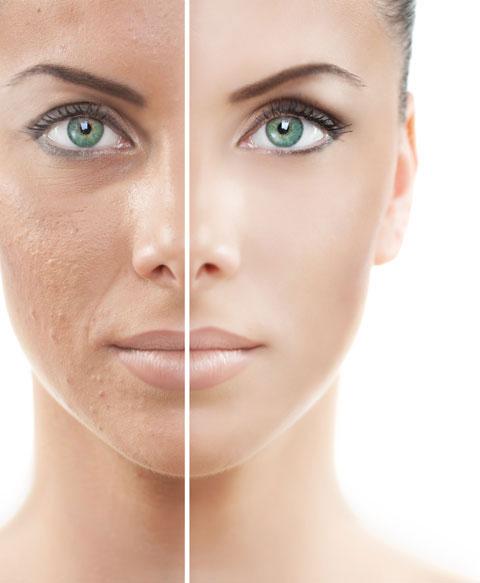 علاج تصبغات الوجه بالليزر في تركيا