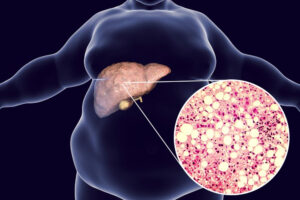 fatty liver and weight loss
